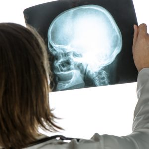 Doctor analyzing human skull x-ray